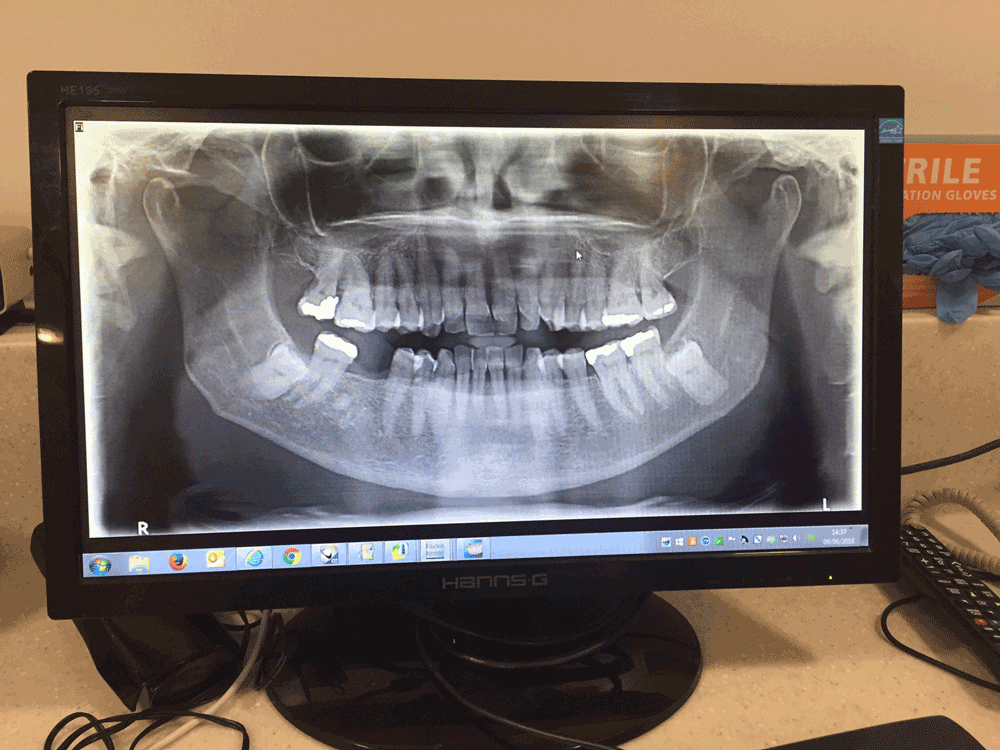 X ray to check teeth for invisalign treatment